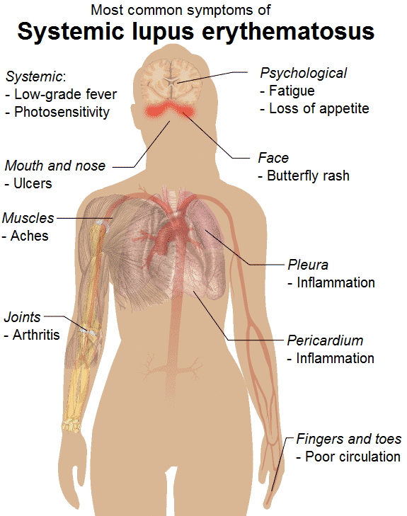 Systemic Lupus Erythematosus Natural Treatments